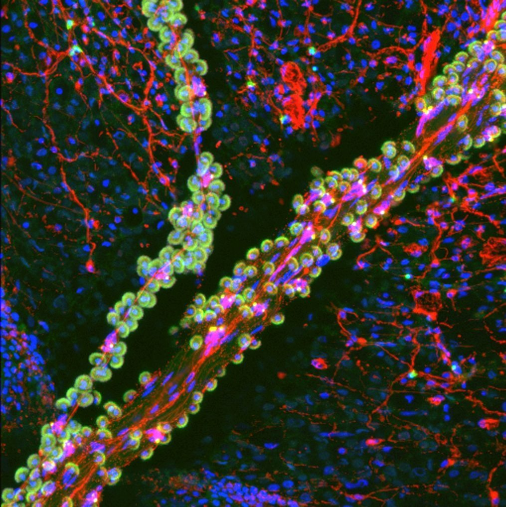 Confocal micrograph of a tentacle of a juvenile Florida Pleurobrachia ctenophore stained for filamentous actin (green) and neurons (red)